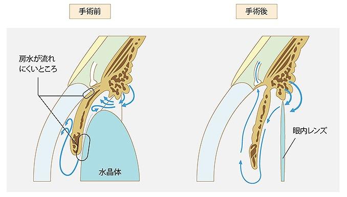 白内障緑内障同時手術