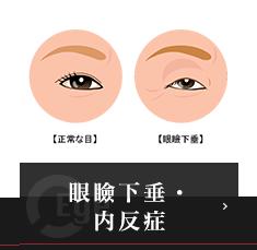 眼瞼下垂・内反症